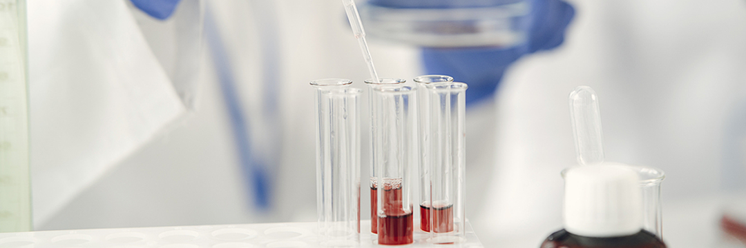 Pretreatment, SLE, supported liquid extraction, sample preparation