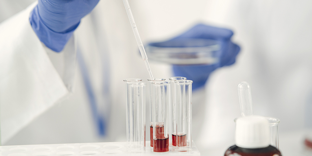 How do I pretreat my samples for Supported Liquid Extraction